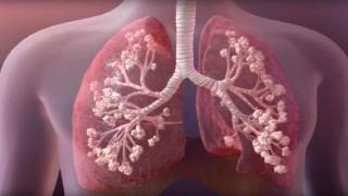Kistik Fibrozis hastaları Büyük Risk Altında